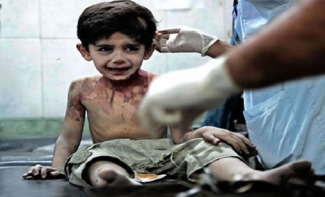 Choking with Tears, Dying Syrian Boy Says, 'I will complain to God about you'