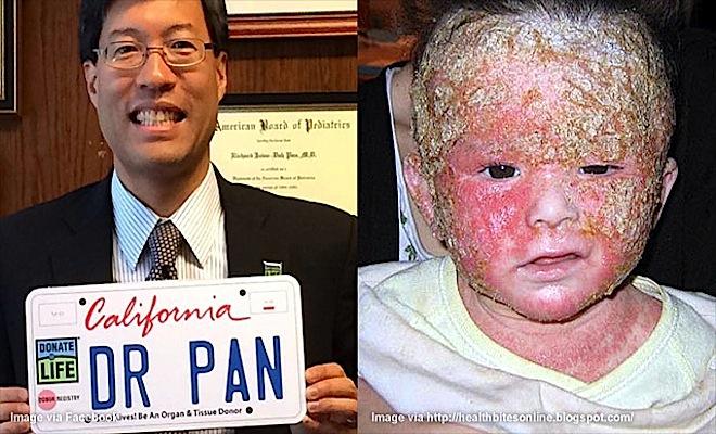Richard-Pan-Vaccine-Damaged-Child